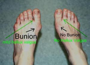 Bx vs No Bx